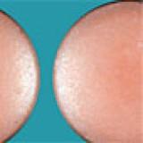 Geen diclofenac bij hart- en vaatziekten